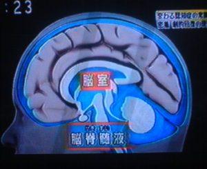 脳 脳脊髄液